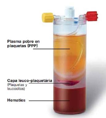 Estado de la sangre tras centrifugación